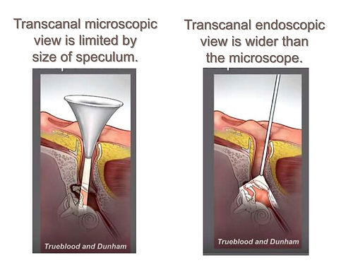 Transcanal endoscopic view