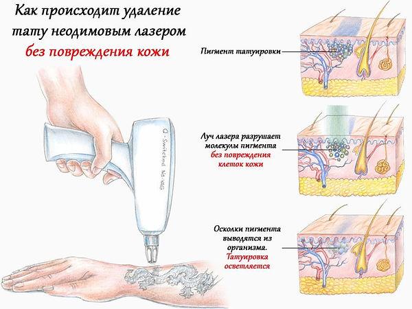 Метод удаления татуировок