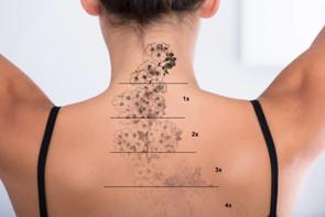 Tattoo Removal Training