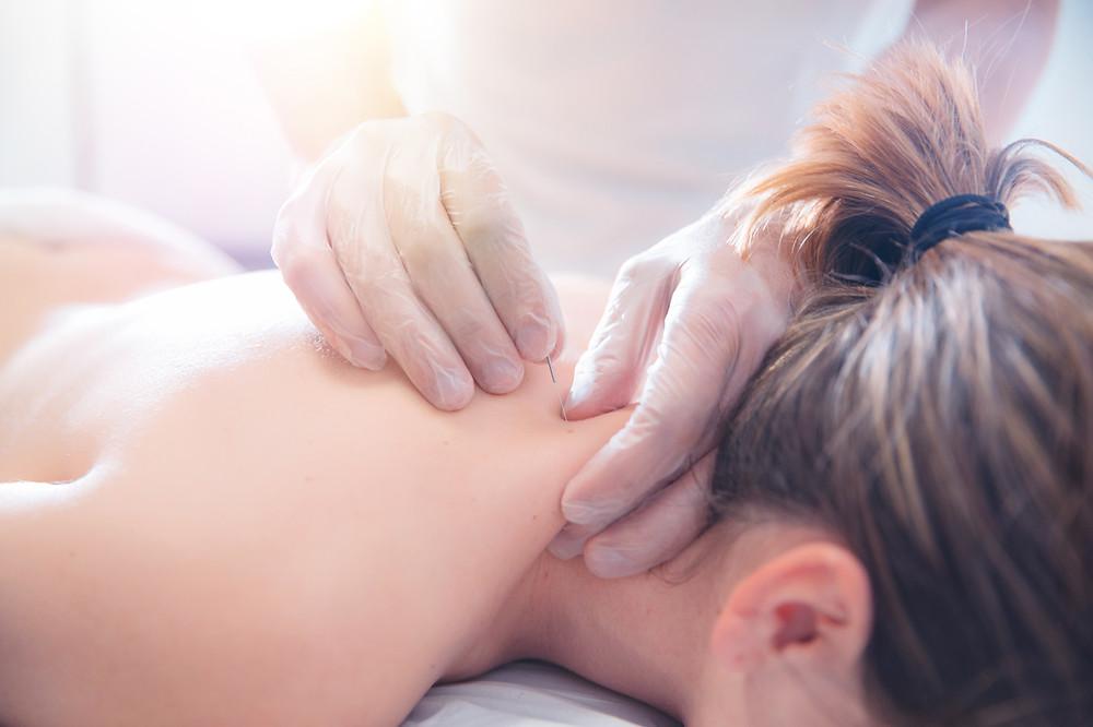 TCIM Acupuncture