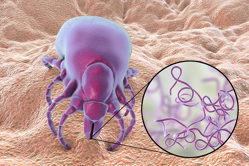 Bacteria Which Cause Lyme Disease