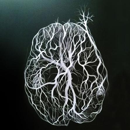 This brain still in my studio__#instart