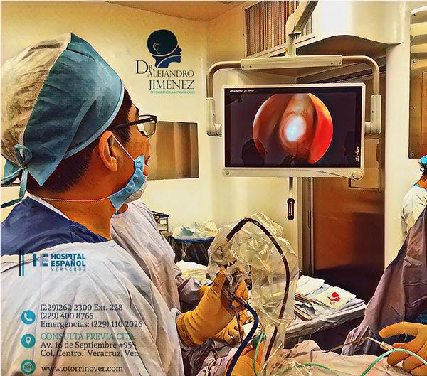cirugia endoscopica de nariz y senos paranasales Veracruz