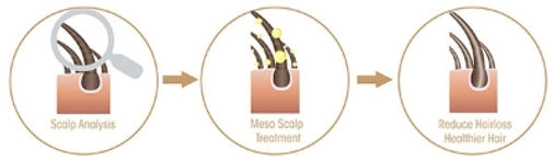 before-after-meso-scalp.jpg