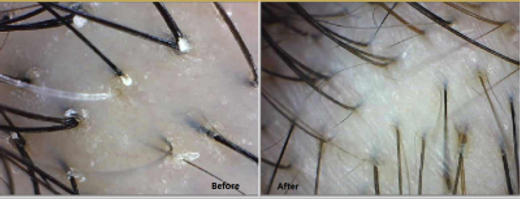meso-scalp-before-after1.png