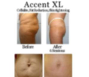 accent xl.jpg