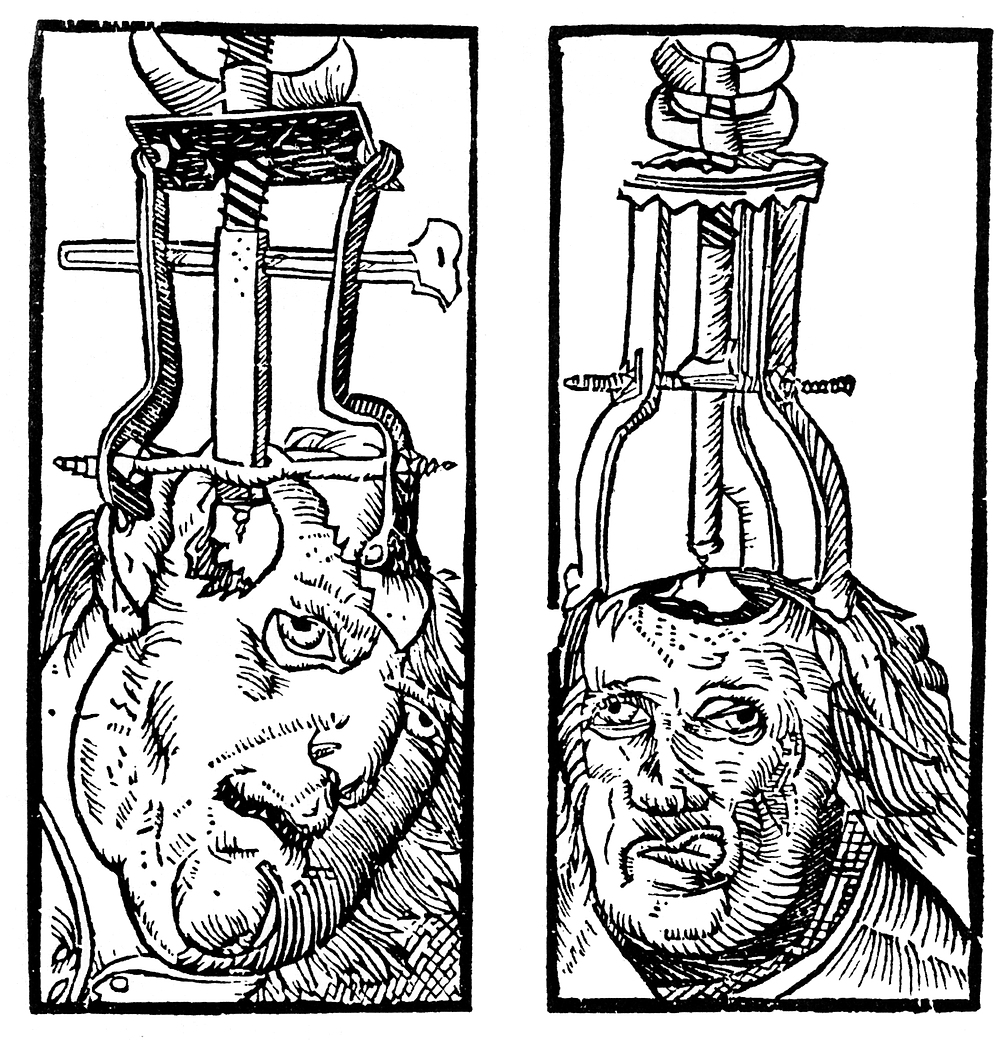 Artist Depiction of Trepanning Procedure