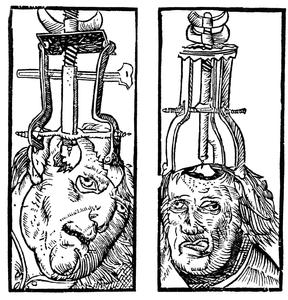 Artist Depiction of Trepanning Procedure