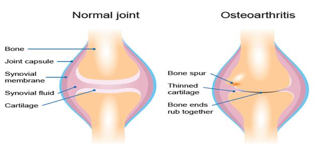 knee arthritis kite family chiropractic