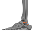 Lat Ankle w ATFL CFL Recon PNG.png