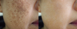 Image before and after spot melasma pigm