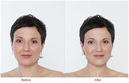 Middle aged Woman with and without bags