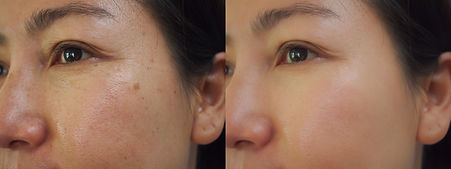 Image before and after treatment rejuven