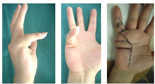 hand_04.png