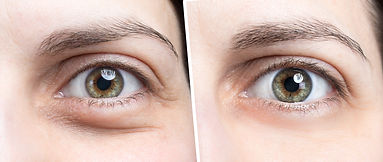 Swollen eye of woman before and after bo
