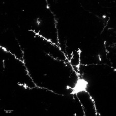 DiO-labeled cortical neuron
