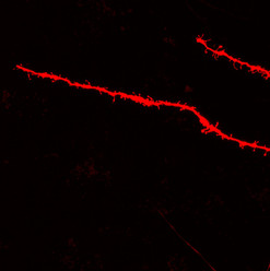 dendritic spines