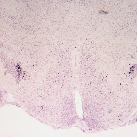 Crh mRNA expression in the PSTN