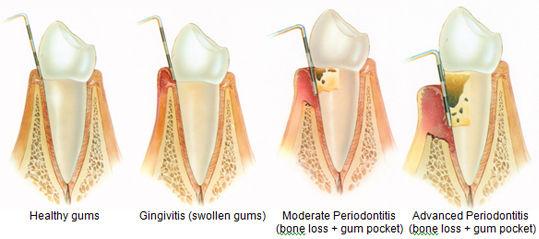 gum disease deep cleaning teeth cleaing