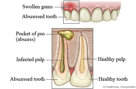 tooth abcess infection root canal extractio