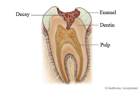 tooth cavity tooth decay
