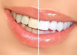 teeth whitening teeth bleaching dark teeth white teeth