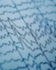 EEG wave in human brain, brain wave patt