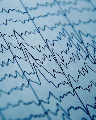 EEG wave in human brain, brain wave patt
