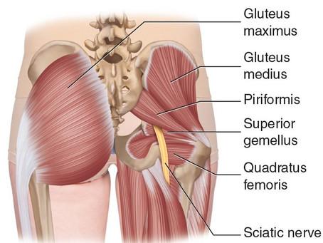 Sciatica: a pain in the butt!