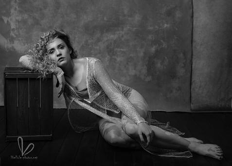 Vitiligo, camaieu, photo de femme avec les cheveux bouclés
