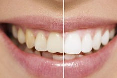 teeth-whitening-leighton-buzzard-240x160