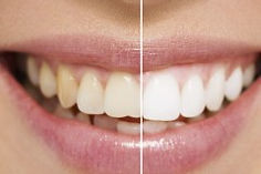 teeth-whitening-leighton-buzzard-240x160