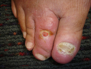 smoker-wound2__ProtectWyJQcm90ZWN0Il0_Fo