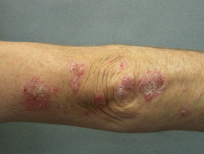 smoker-psoriasis1__ProtectWyJQcm90ZWN0Il