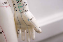 acupuntura-3 (1).jpg