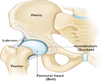 Hip Impingement Syndrome Pain can Lead to Hip Arthritis