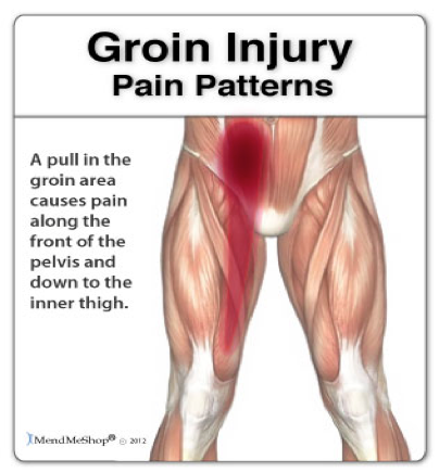Persistent Achy Groin Pain when Playing Hurling & Football