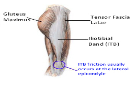 Knee Pain when walking or running