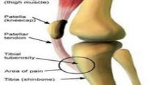 Juvenile Knee Pain Treatment & Management