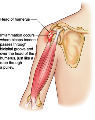 """Ongoing Sore Pain at the front of the Shoulder joint"""