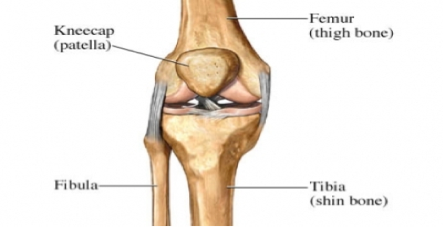 Ongoing Frontal Knee Pain - Bipartite Patella Fracture