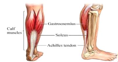 'Treatment of Frustrating Heel Pain – Achilles Tendinopathy?'