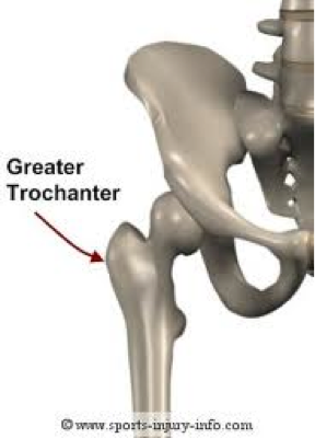 Hip & Lower Back Pain – Trochanteric Bursitis