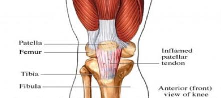Knee Pain under the Knee Cap & Associated Weak Hip Muscles