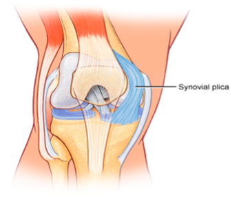 Knee Pain when Sitting & Climbing Stairs – Plica Syndrome