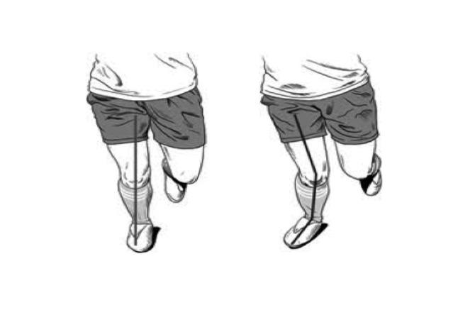 Can Alterations in Movement reduce Knee pain