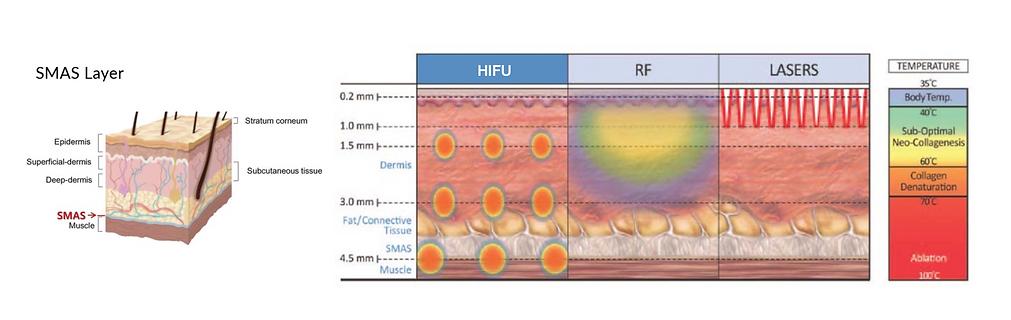 Treatment depths of HIFU - GILTII.png