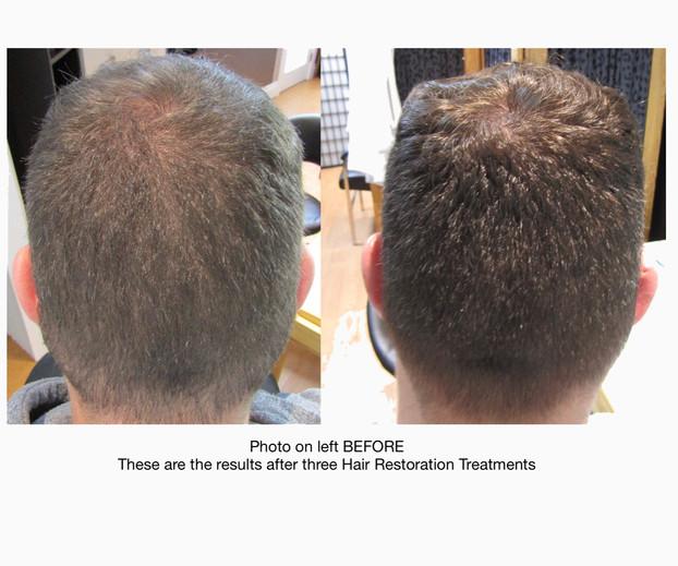 Hair restoration GILTII.jpeg