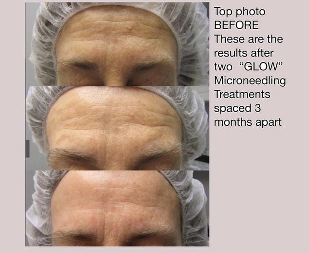 Needling Facial GILTII.jpeg