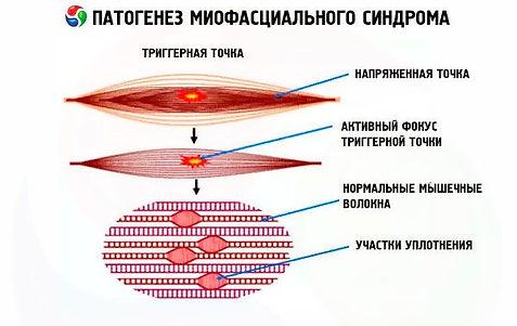 miofascialnyy-bolevoy-sindrom-2.jpg
